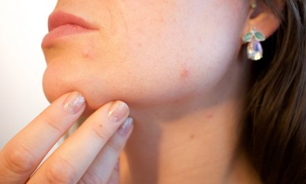 Tips For Successfully Ridding Your Skin Of Acne